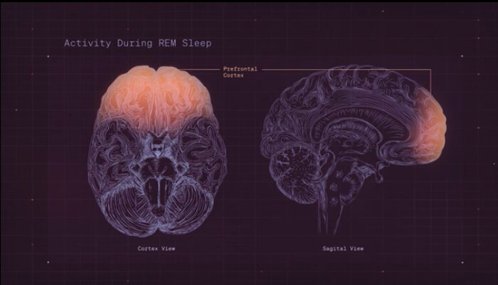 Brain activity during REM sleep